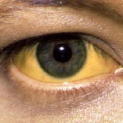 желтые склеры фото